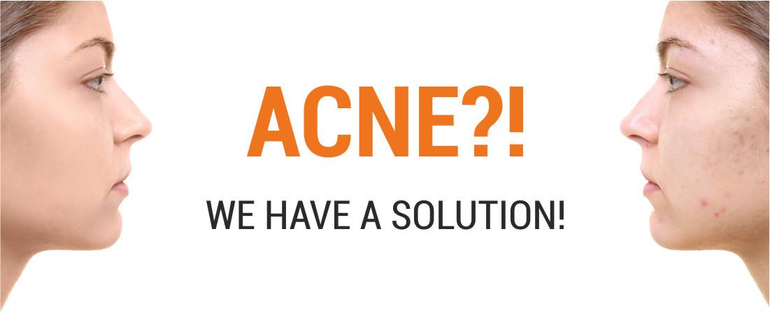 Evolut Acne solution